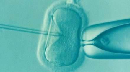 Stock photo of IVF reproduction reproductive therapy