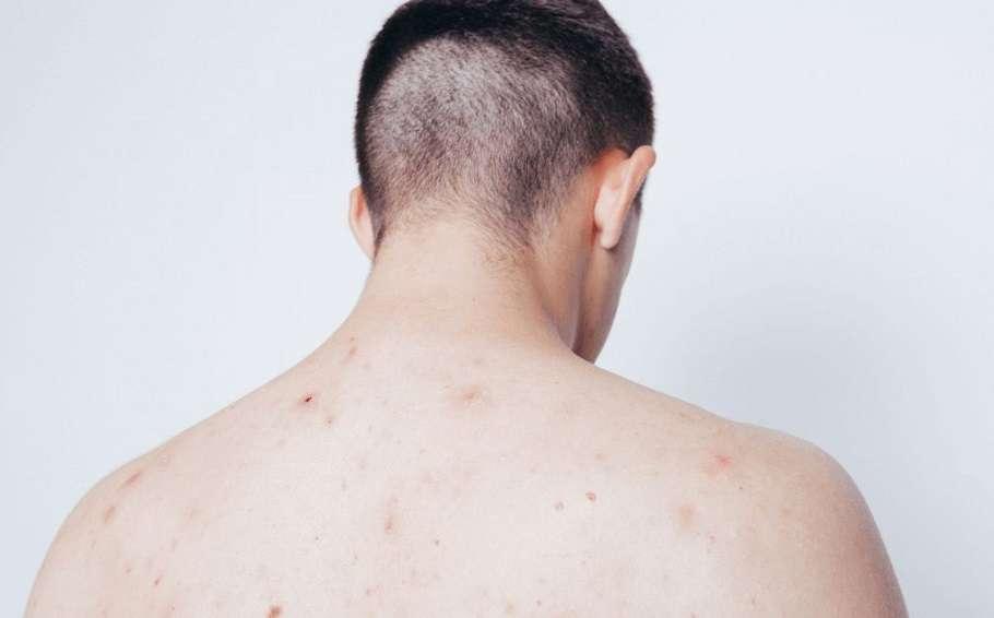 back acne, backne