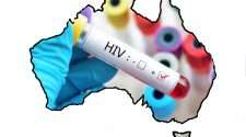 hiv diagnoses kirby institute