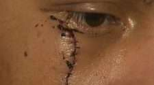 Boston man attacked with shovel and box cutter, stitches