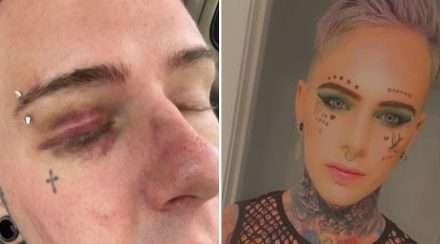 gay new zealand man homophobic attack hate crime